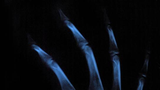 Lesiones en los porteros (I) – Lesiones de mano o muñeca (I)